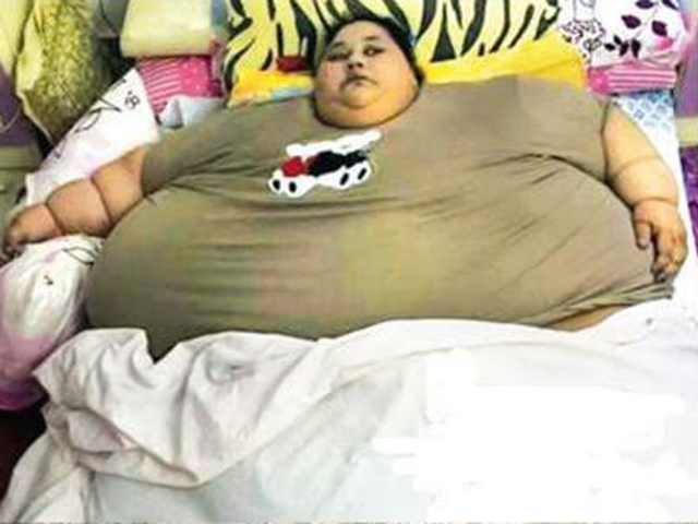 New Rs 2-crore 'hospital' for surgery of 500-kg Egyptian woman