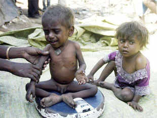 It is a question being asked about children across India, where a long economic boom has done little to reduce the vast number of children who are malnourished.