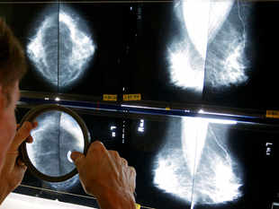 A radiologist uses a magnifying glass to examine mammograms for breast cancer.