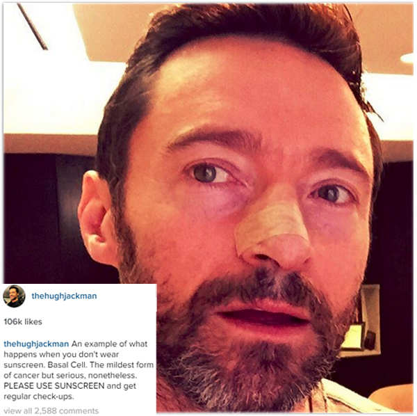 Hugh Jackman undergoes treatment for skin cancer on nose for the fourth time