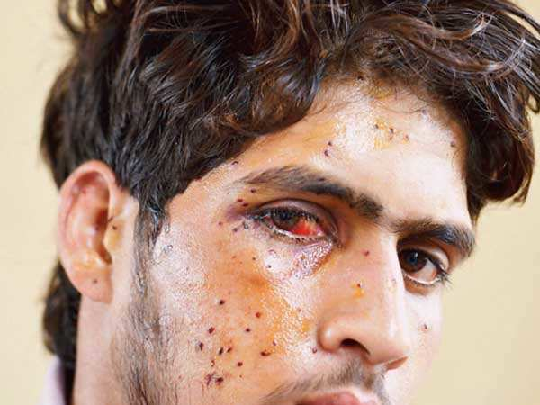 Searing image of Kashmir post Burhan Wani is pellet-scarred faces of people
