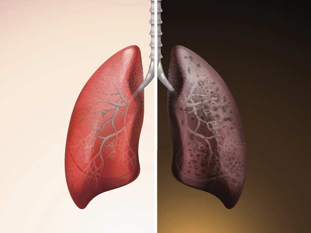 Non-smokers can get lung cancer and the reasons are around us