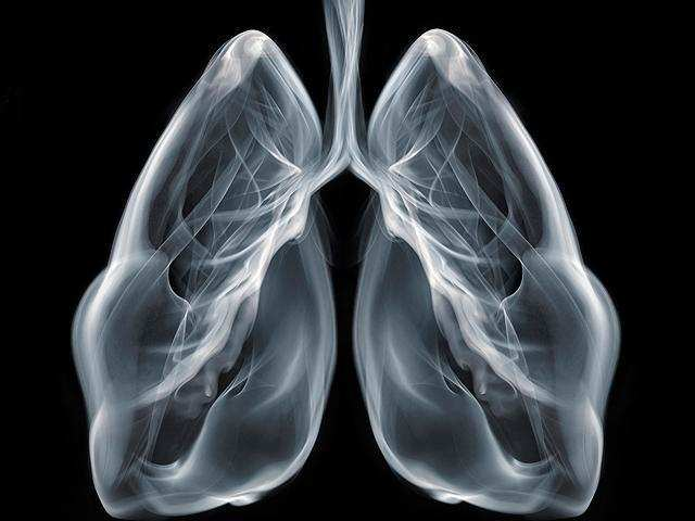 The report suggests that lung cancer prevention through smoking cessation should be a priority in the care of people living with HIV.