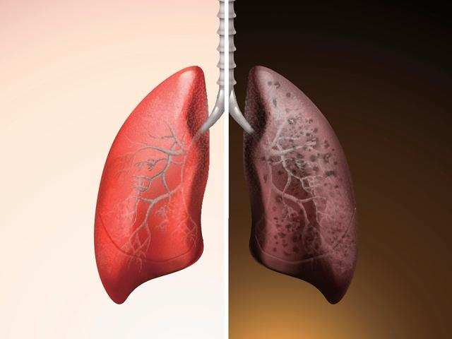 Forget smog, your cooking habits can also up risk of lung cancer