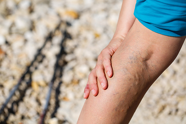 varicose veins: Do you sit for long hours at work? It can lead to varicose  veins - The Economic Times