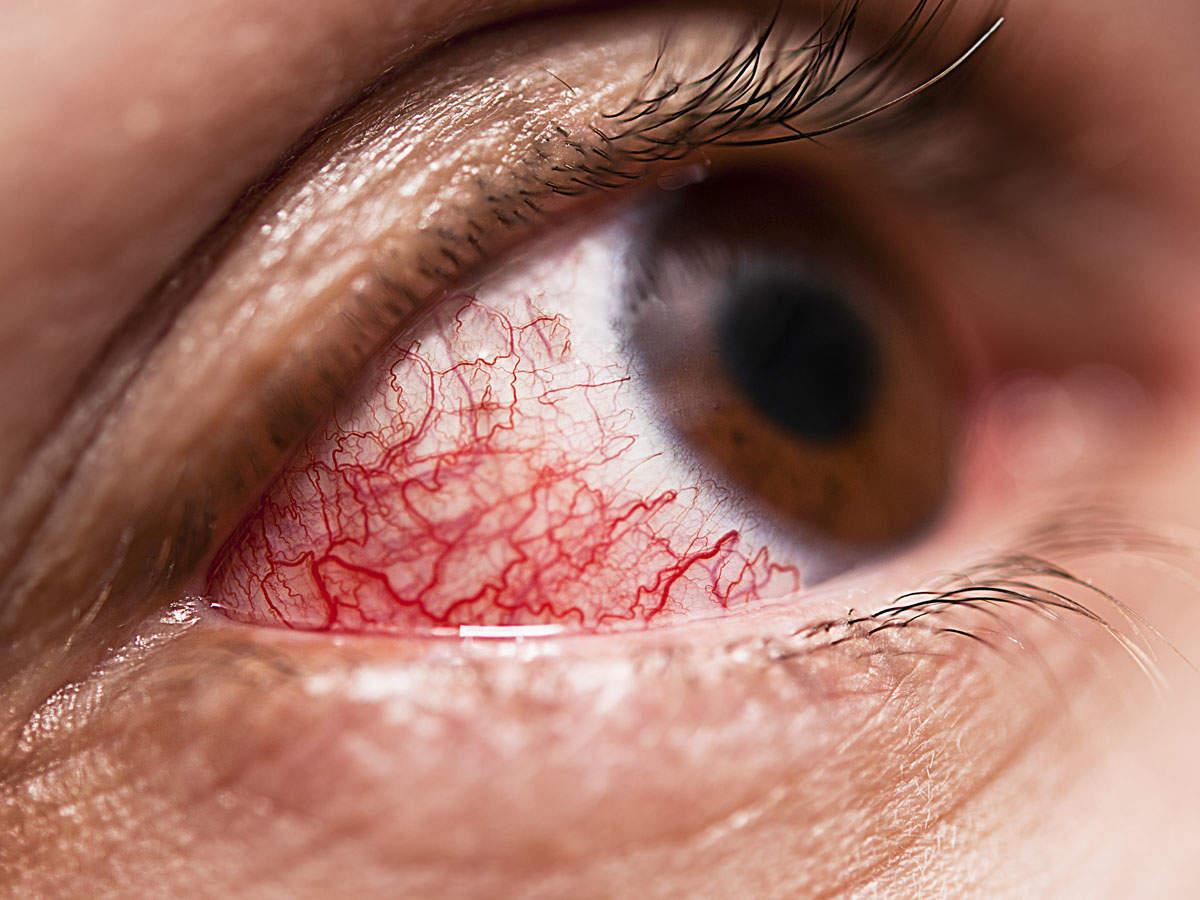 eye-pain-pink1_iStock