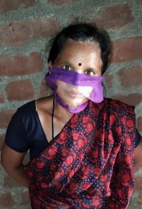 Face masks with transparent mouth cover – a boon to persons with hearing impairment