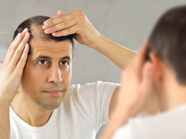 Image result for Hair Transplantation for Hair Loss