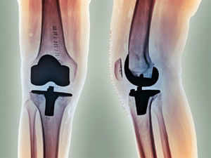 Scientists have successfully developed 'artificial bones' from umbilical cord stem cells, paving way for repair of bones.