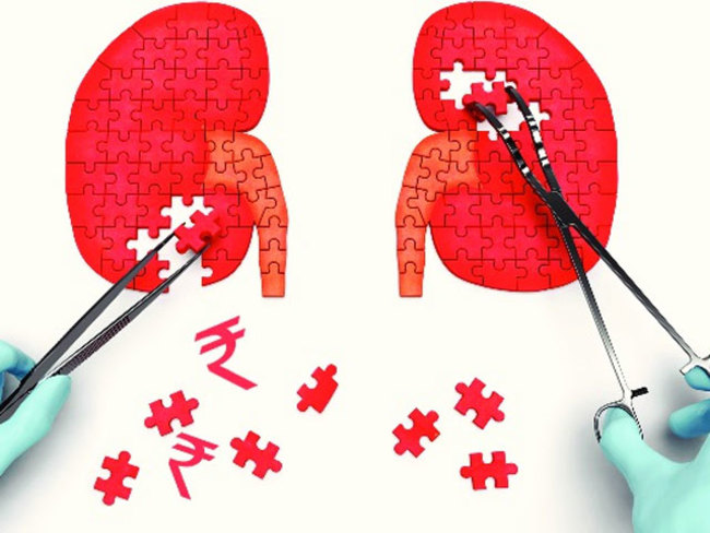 Superbugs Hinder Kidney Infection Treatment The Economic Times