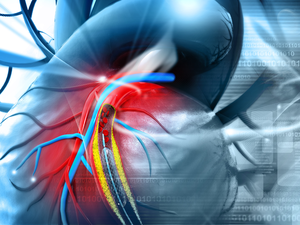 Stents: Surgical strike! Prices of drug eluting stents cut