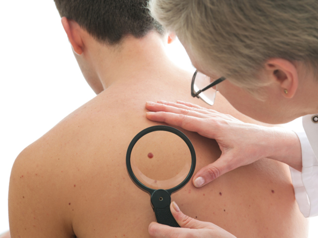 Risk Men Listen Up If You Take Asprin Daily You May Double The Risk Of Melanoma The Economic Times