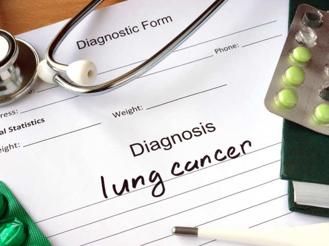New blood test offers hope to detect lung cancer early