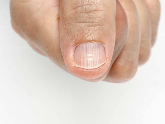 Infections, anemia, psoriasis: What nails can reveal about your ...