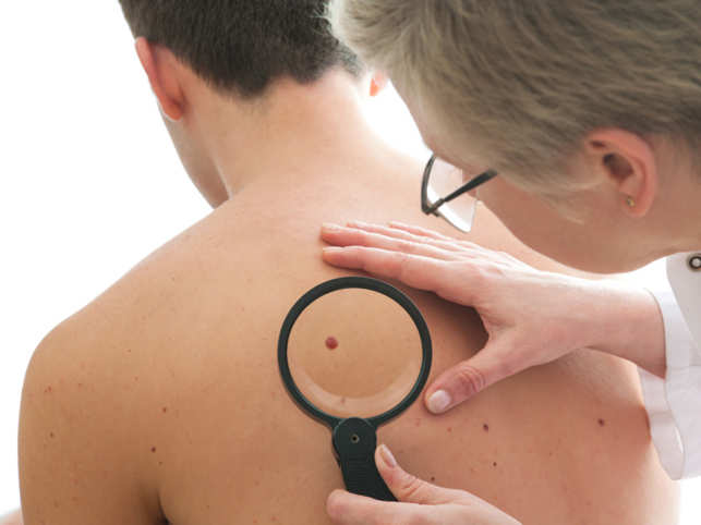 Skin cancer death rates soar, mostly for men