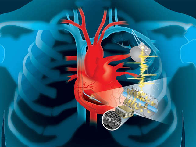 Device to power heart