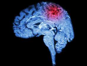 New device can quickly detect stroke, monitor poor blood flow to the brain