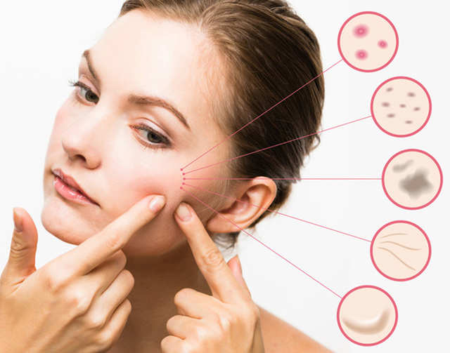 Go easy on sweets this festive season: Poor dietary habits can cause acne
