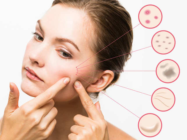 skincare-face3_ThinkstockPhotos