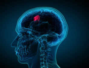New algorithm can find treatment to deadly brain cancer