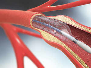 stents-getty