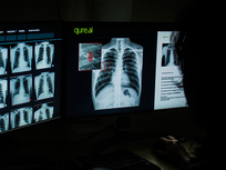 From India to Italy and Mexico to Oman, Qure.ai is a common ally in the fight against pandemic
