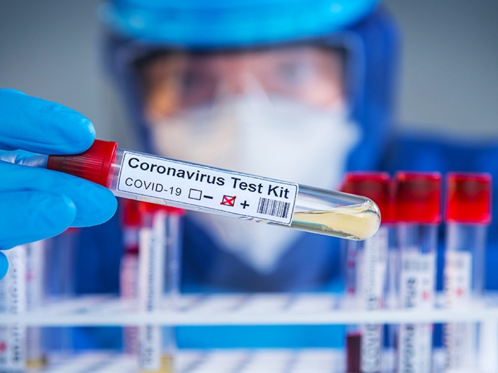 How to cap the virus in the current situation: cast the testing net wider and act fast on the data