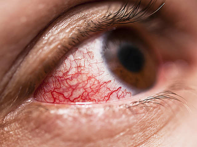 People suffering from diabetic eye disease five times more likely to get severe Covid