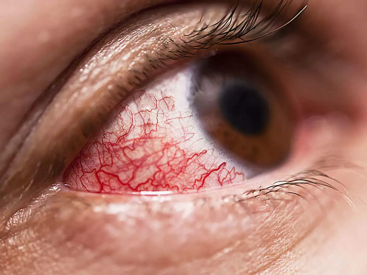 Mucormycosis: What is Mucormycosis? How black fungal infection is making  people blind?