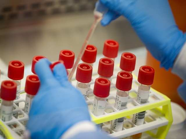 As private labs open up for testing, Covid-19 positive cases ...