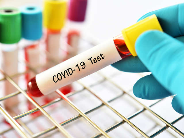 covid 19 origin: Wuhan virology lab chief denies COVID-19 ...